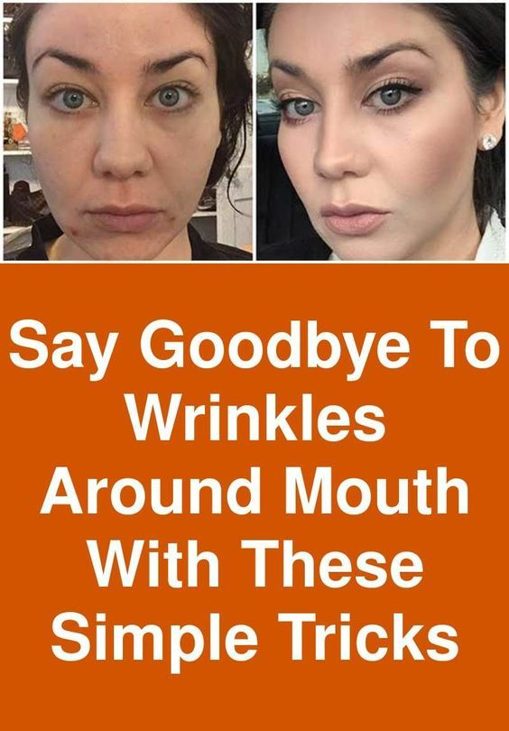 Say Goodbye To Wrinkles Around Mouth With These Simple Tricks