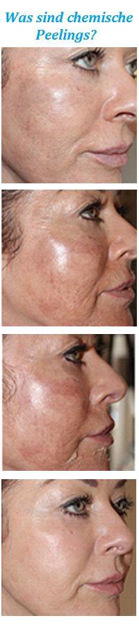 Ein chemisches Peeling ist eine äußerliche, dermatologisch-ästhetische Anwendung für die Haut mit Fruchtsäure oder chemischer Säure, um Falten, altersbedingte Hautveränderungen, Sonnenschäden, Pigmentflecken oder oberflächliche Aknenarben zu beseitigen und die Haut zu straffen. Ein chemisches Peeling wirkt stimulierend und verbessert die Hautoberflächenstruktur. Die unterschiedlichen Substanzen, die zur Wahl stehen, wirken in ihrer chemischen Zusammensetzung entweder schwächer oder stärker…