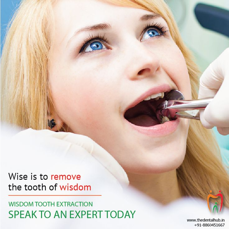 Wise is to remove the tooth of wisdom. Speak to our expert today for painless wisdom tooth extraction. #WisdomTooth #ToothExtraction #Dentistry