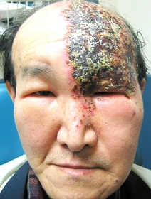 Herpes Zoster Shingles Ophthalmic Distribution Of