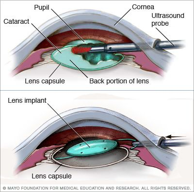 Are you planning for Cataract Surgery in Hyderabad. Then Sreenetralaya eye care hospital is best choice for cataract surgeries with specialized team diagnosing you. for more info Visit: http://sreenetralaya.org/facilities/cataract-surgeries