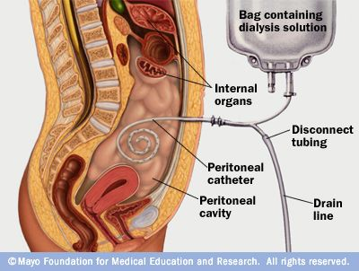 25+ best ideas about Peritoneal dialysis on Pinterest | Dialysis ...