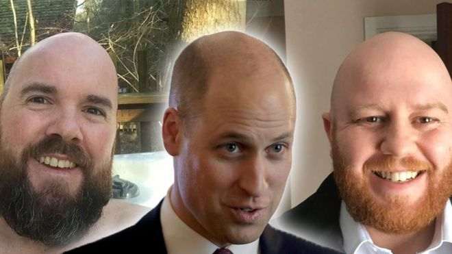 """Prince William welcomed to 'the bald club' by serving members."""" By James WaterhouseNewsbeat Reporter19, January 2018."""