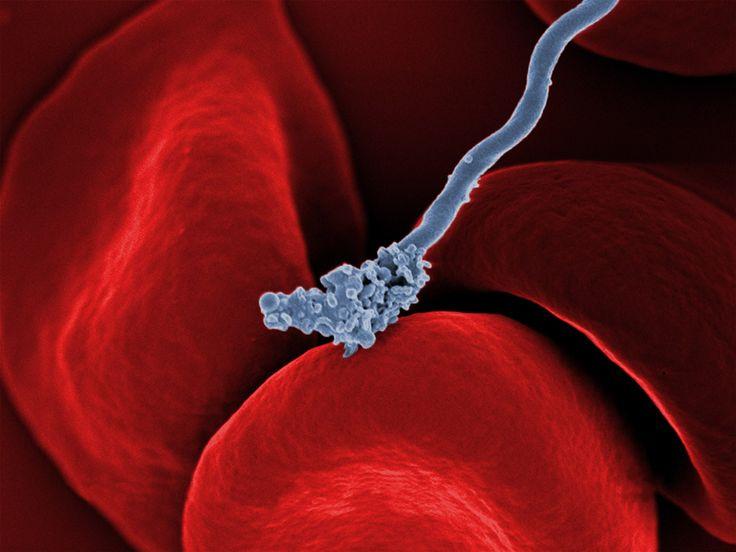 Un batterio che causa la febbre ricorrente (grigio) su alcuni globuli rossi.  (Tom Schwan, Robert Fischer e Anita Mora, National Institute of Allergy and Infectious Diseases, National Institutes of Health)
