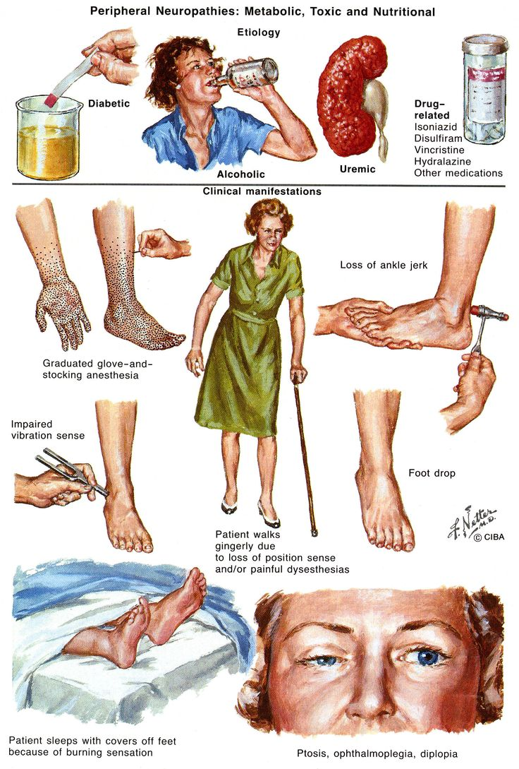 physiotherapy for diabetic peripheral neuropathy dpn Diabetic neuropathy (dn) is the highly occurred complication of diabetes mellitus it has been defined as an event of peripheral nerve dysfunction characterized by pain, allodynia, hyperalgesia, and paraesthesia the current study was conducted to evaluate the efficacy of low-level laser therapy.