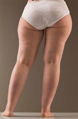Zadeltassen zijn plaatselijke vetophopingen aan de buitenkant van de bovenbenen. - Afbeelding van https://idealbody.nl/