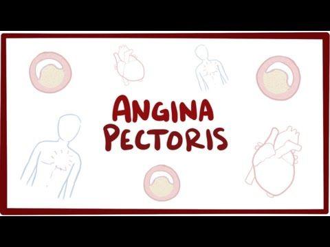 Angina Pectoris (Stable Angina) Nursing Care Management: Study Guide