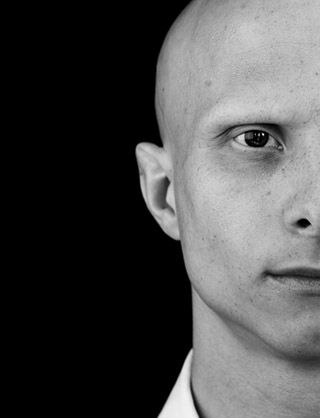 Picture of a man with Alopecia Universalis (complete hair loss all over the body). Surprisingly, this is a pretty huge look in fashion at the moment (the lack of eyebrows, that is).