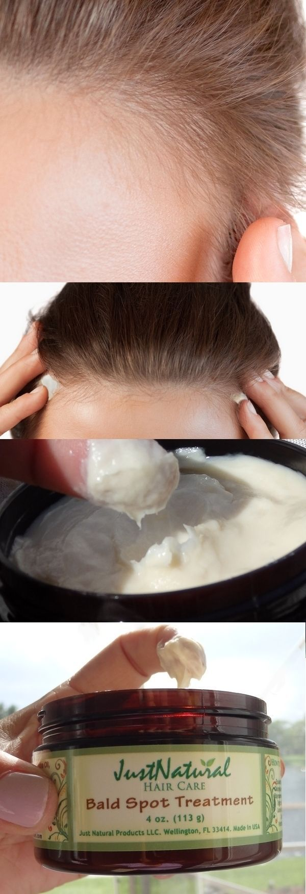 The bald spots may not be permanent. If you do not cause further damage and begin to nurture your follicles they can recover and become healthy. This hair loss spot treatment cream is a hair accelerator that feeds follicles and helps remove obstacles that impede hair from being its healthiest. Think of it as a hair loss vitamin formula of herbal extracts that is going to rejuvenate your hair back into the growth phase.