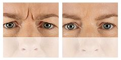 Xeomin – Xeomin is used in facial aesthetics to temporarily improve the appearance of moderate to severe glabellar frown lines. These lines occur between the eyes, and are very commonly seen in the aging process.