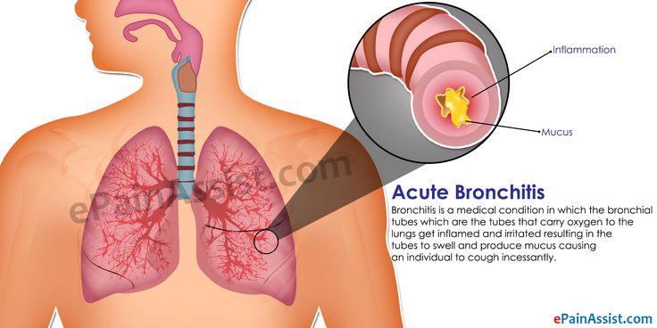 Acute Bronchitis: Treatment, Home Remedies, Prevention, Symptoms