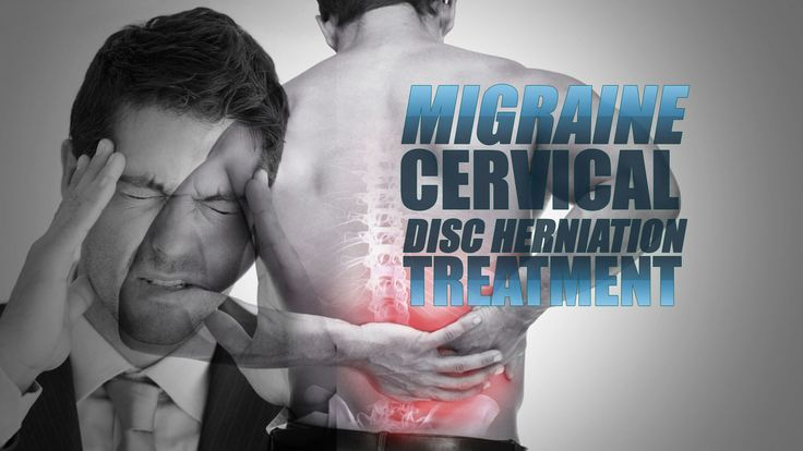 Migraine And Cervical Disc Herniation Treatment | El Paso TX Chiropractor