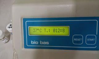 Observamos los segundos para determinar el tiempo de la protrombina de nuestra muestra.