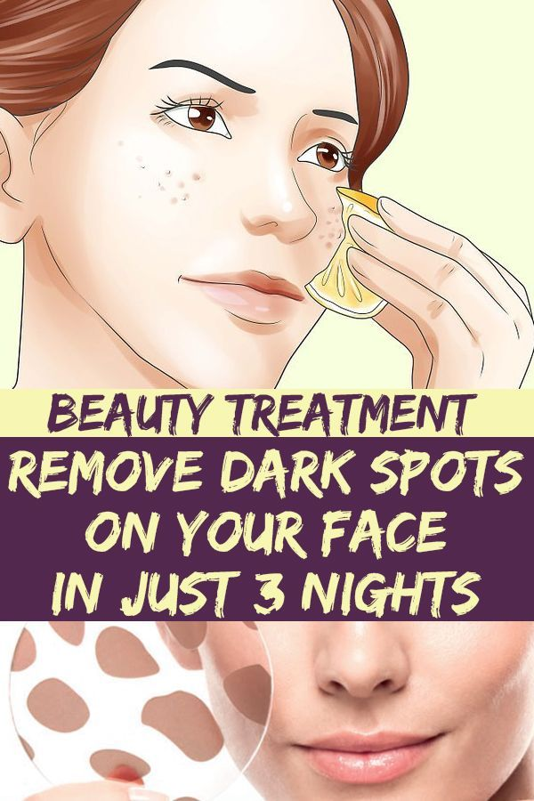 With This Ingredients Can Remove Dark Spots On You Beautytreatment Dark Eczema Treatment For Lips Face Remove Dark Spots Skin Discoloration Face Cleanser