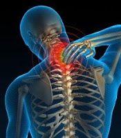 neck arthritis symptoms
