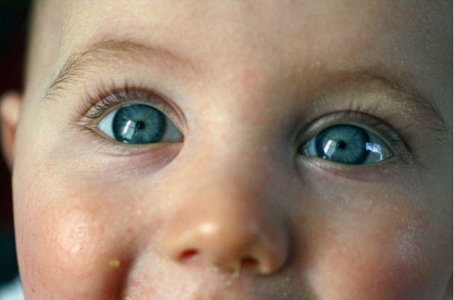 Čo prezradia oči o vašom zdraví?