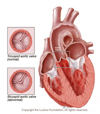 bicuspid aortic valve - This is what I have going on! Guess I actually born with a broken heart lol