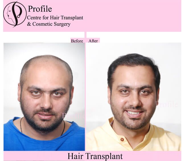 FUT hair transplant is also known as the strip surgery. This is another best hair transplant treatment after FUE transplant. The recovery time is very les as compares to others their transplant techniques. To get the best FUT hair transplant surgery in Mumbai you can contact to our clinic. For more details about FUT then you can visit our website.