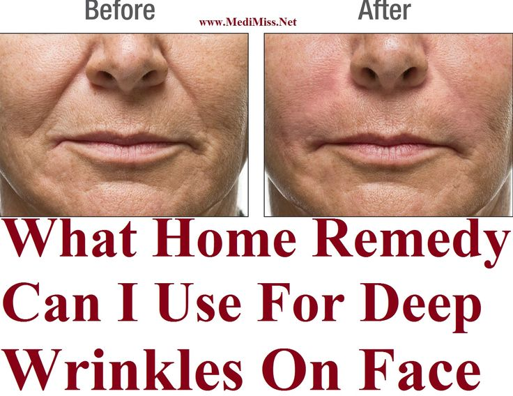 Wrinkles Around Mouth Unusual Home Remedy