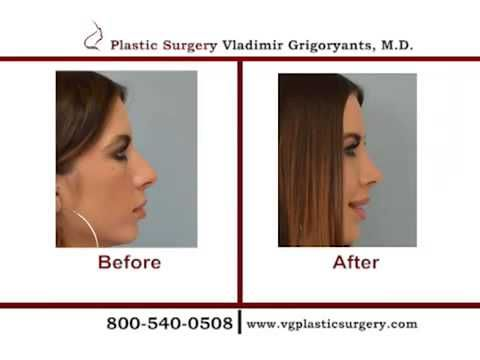 At the Los Angeles Rhinoplasty, state of the art medical equipment ensure the surgeon who is well experienced in closed Rhinoplasty.... http://www.vgplasticsurgery.com/beverlyhillsnosesurgery.htm