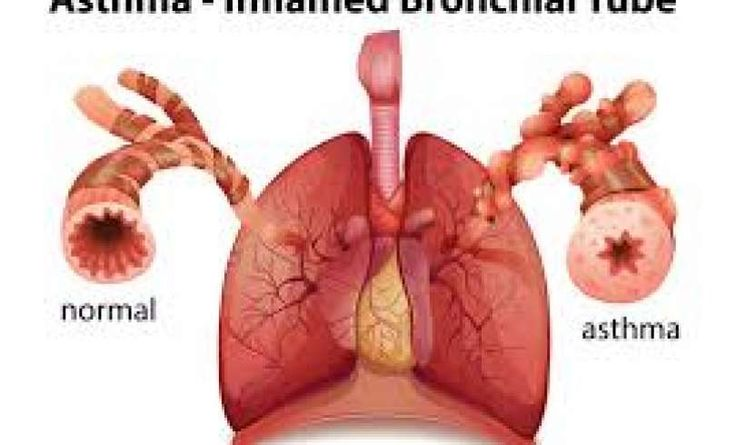 Do Allergies Cause Asthma? / ¿Son las alergias que causan asma?