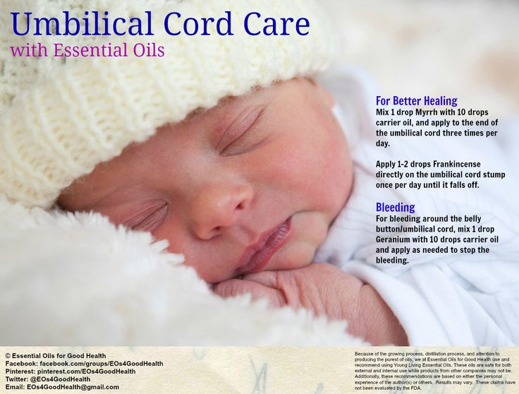 Best 25+ Baby umbilical cord ideas on Pinterest | Cute babies ...