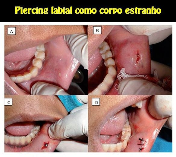 Piercing labial como corpo estranho   OVI Dental