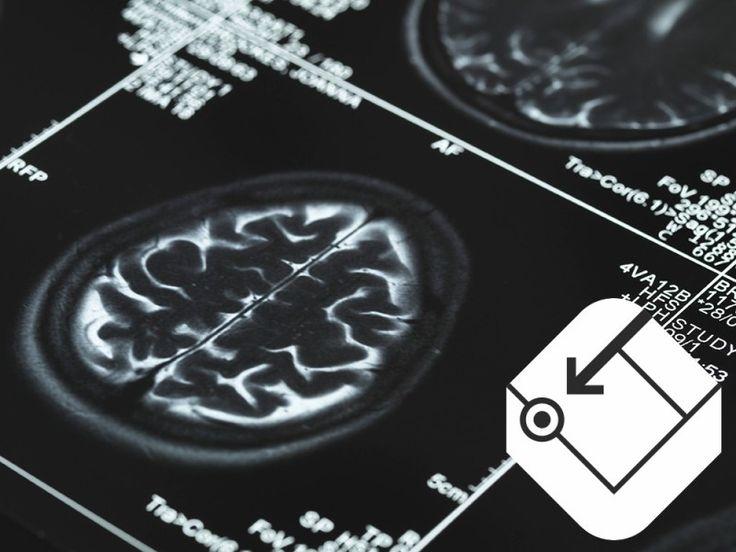 LSD und Ecstasy als Medikamente? Einge Forscher glauben, dass die Drogen das Zeug zum Heilen haben.