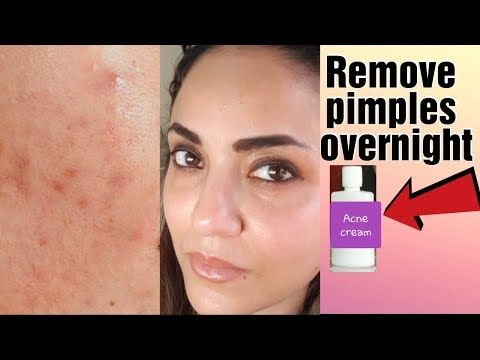 Get Rid Of Pimples On Face 100% 👍 – Best Acne C…