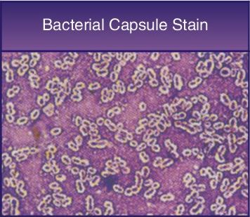 Intended  for staining  Bacterial  Capsule. Specification   2x20ml