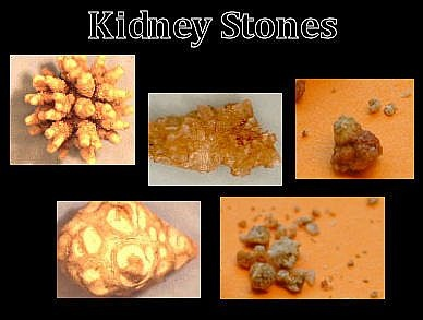 Different types if stones
