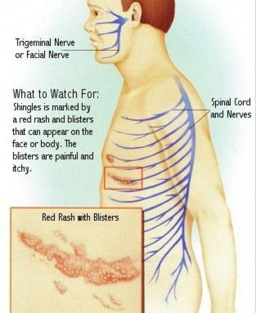 Shingles Causes Symptoms And Types Martialarts Types Of Martial Arts Shingles Causes What Causes Shingles Shingles Relief