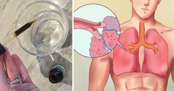 Olio Essenziale di Origano: l'antistaminico naturale che purifica polmoni e vie respiratorie.