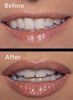 Permanent Makeup   The Arthur Company Salon #LipFillersGoneWrong #LipPencilTutor…