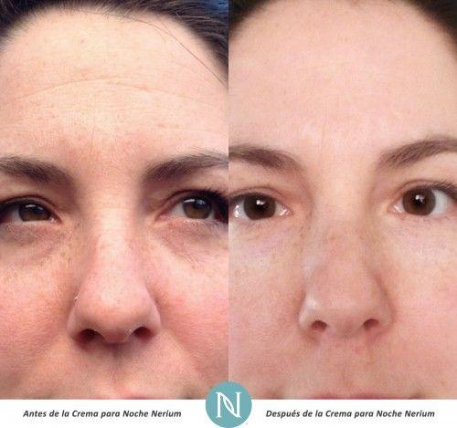 Otros productos de cuidado para la piel no pueden ofrecer #ResultadosReales como #Nerium http://nerium.io/3bf3