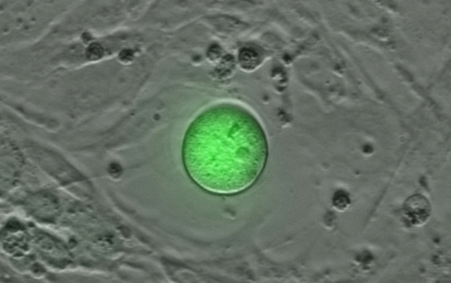 Human Oogonial Stem Cell. Stem Cells that may make eggs in adult women!