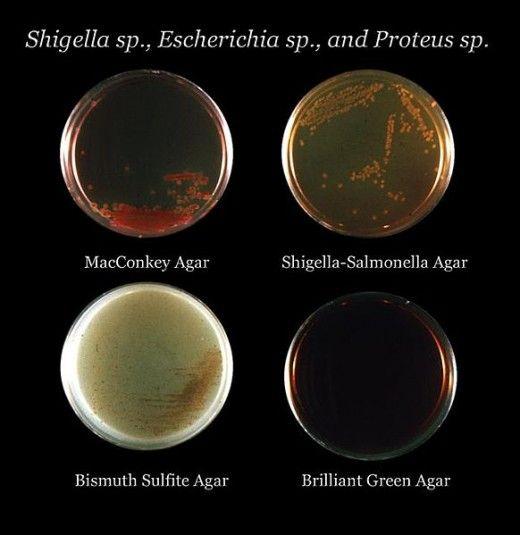 how to clean an agar culture