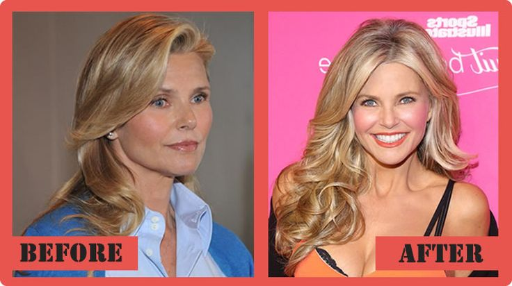 Christie Brinkley Plastic Surgery Before And After.  Not a lot of difference here.  Laser and Jane Iredale Amazing base (+ more make up in the after pic).