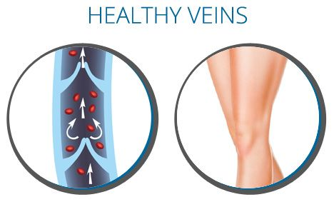 Get rid of your varicose vein problems with our specialized treatments in Bellevue WA. We have team of award winning doctors, who will always here to help you out. We have successfully treated a large number of patients in our area. Visit us today!