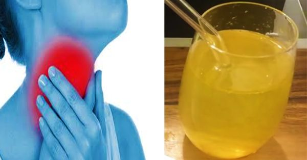 5 natural remedies to remove phlegm & mucus - Central Readers