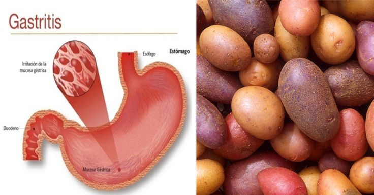 Foods To Eat With Bile Reflux