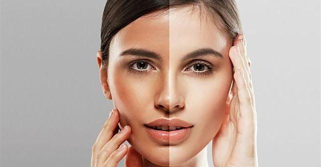 24+ Cara mengatasi kulit belang di wajah inspirations