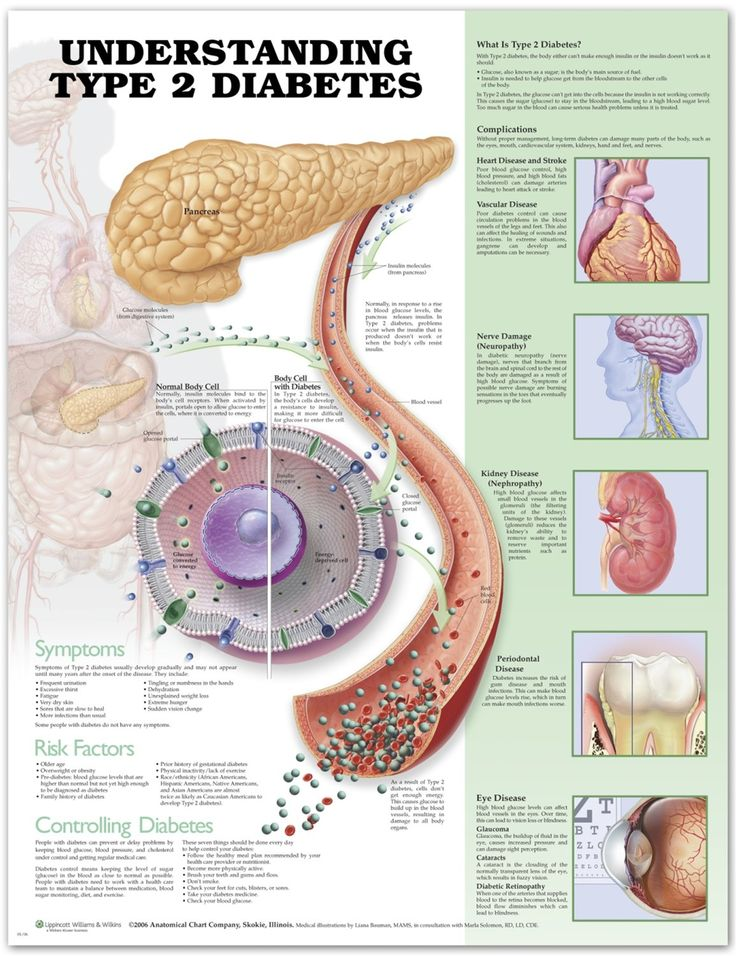 Understanding Diabetes Infographic [reverse/cure this disease using the Newcastle Diet --- please check it out--free and out there to use / no med. needed]