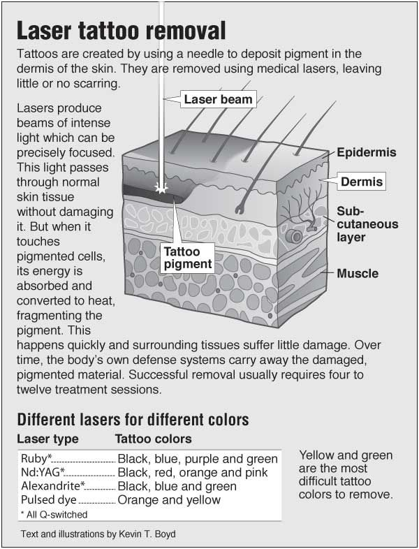Information graphic about Laser tattoo removal with links to acupressure for skin pain