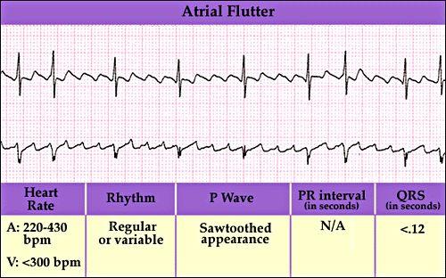 Atrial flutter break down