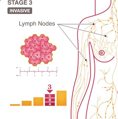 What does it mean to have Stage 3 breast cancer?