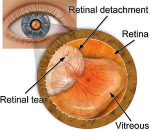 Retinal detachment is a serious condition, but can be easily treated. If you are experiencing flashes of light, a curtain or veil  in your vision, call your eye doctor immediately.