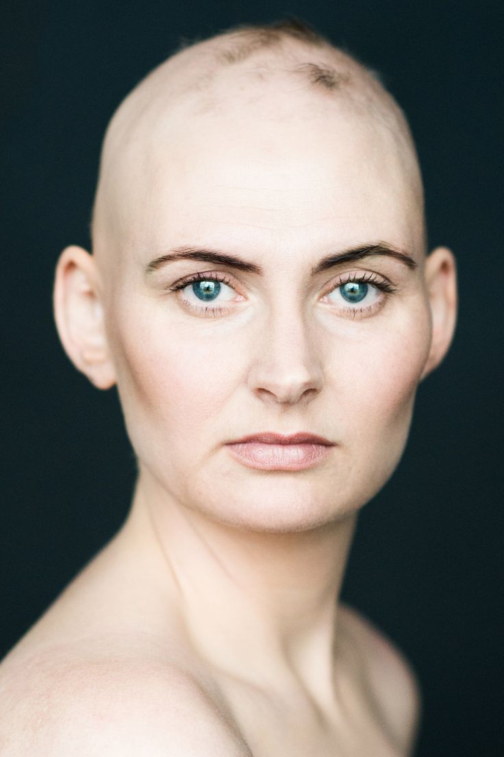 With her photo series Baldvin, Icelandic photographer Sigga Ella captures the beauty of women with alopecia, an autoimmune disorder that causes the loss of hair.