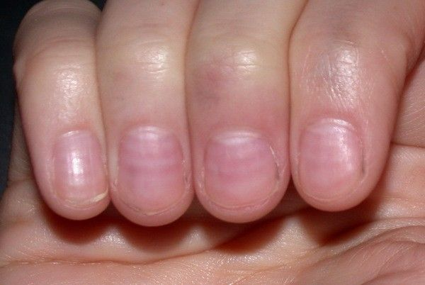 Nail problems can be create Causes Fingernail. Its also your toenail and fingernail. These nail problem and infection need proper treatment and care.