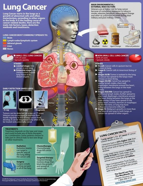 Lung #Cancer #Infographic